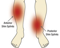 Shin_splints